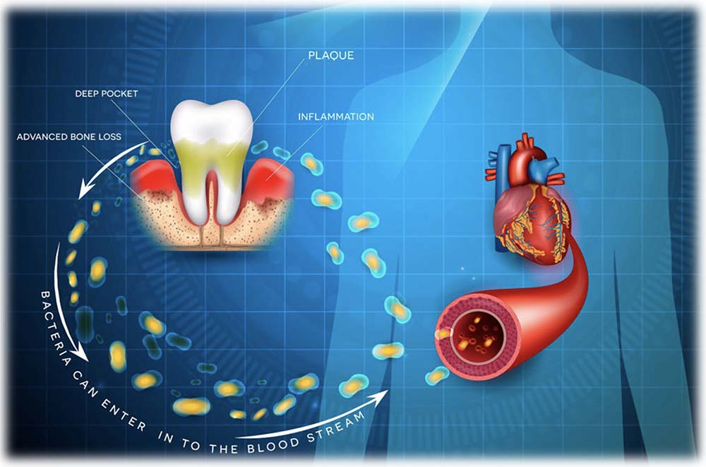 Heart conditions Related To Dental Health